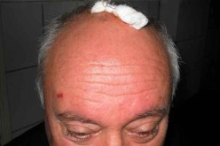 Un bărbat din Dej susține că a fost bătut cu bestialitate în fața propriului garaj – FOTO